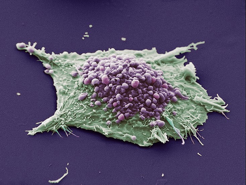 Lung cancer cell.