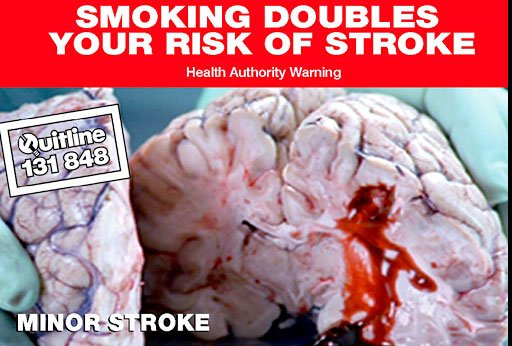 Smoking doubles the risk of smoke announces this ad against the backdrop of a bleeding brain.