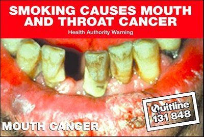Stained and rotten teeth appear in this quit poster.