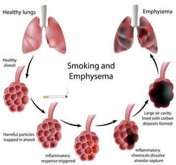 Image showing development of emphysema.