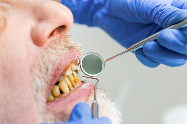 Man in the dentist with rotten teeth