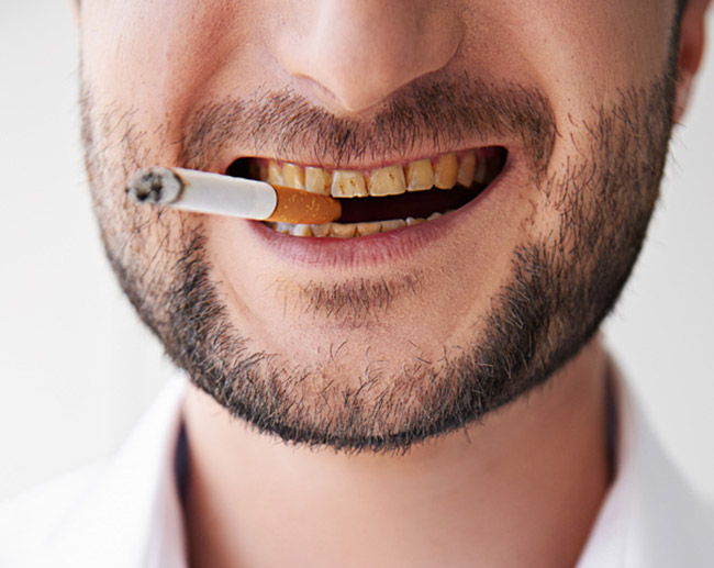 Man smoking with bad stained teeth